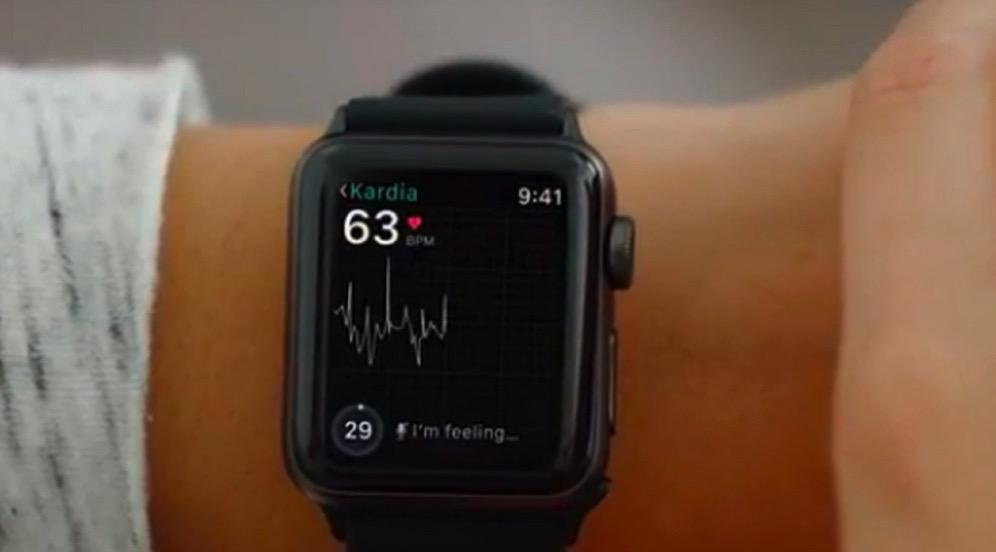 心電図がとれるApple Watch用医療アクセサリー「KardiaBand」が発表!